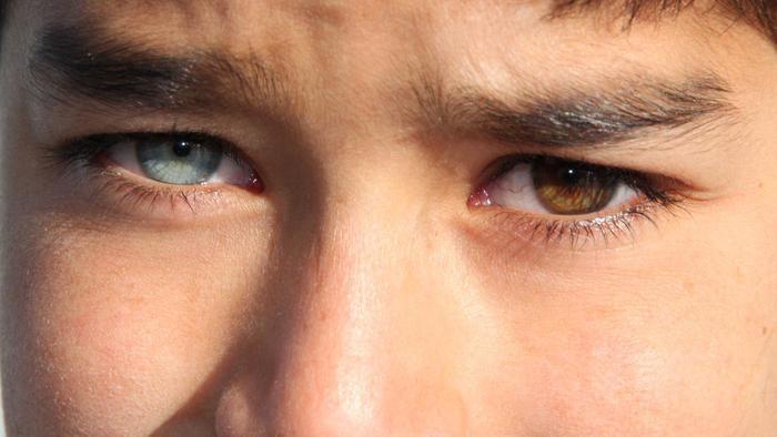 rare-heterochromia-humans_14ae35880f07567a